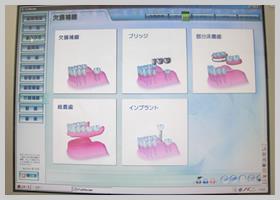 歯科用ソフト